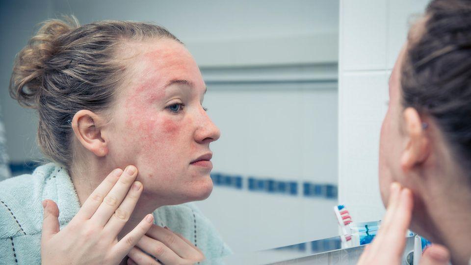 TK bietet digitalen Haut-Check an