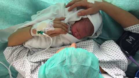 Kaiserschnitt-Baby