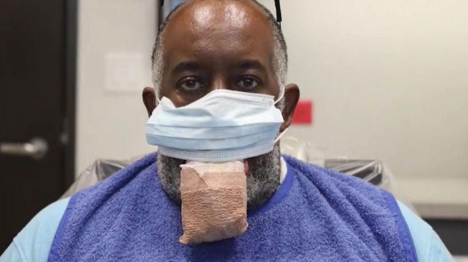 Zunge angeschwollen: Amerikaner leidet an merkwürdigem COVID-19-Symptom