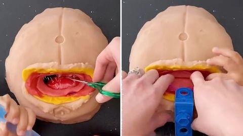 Kaiserschnitt mit Knetmasse