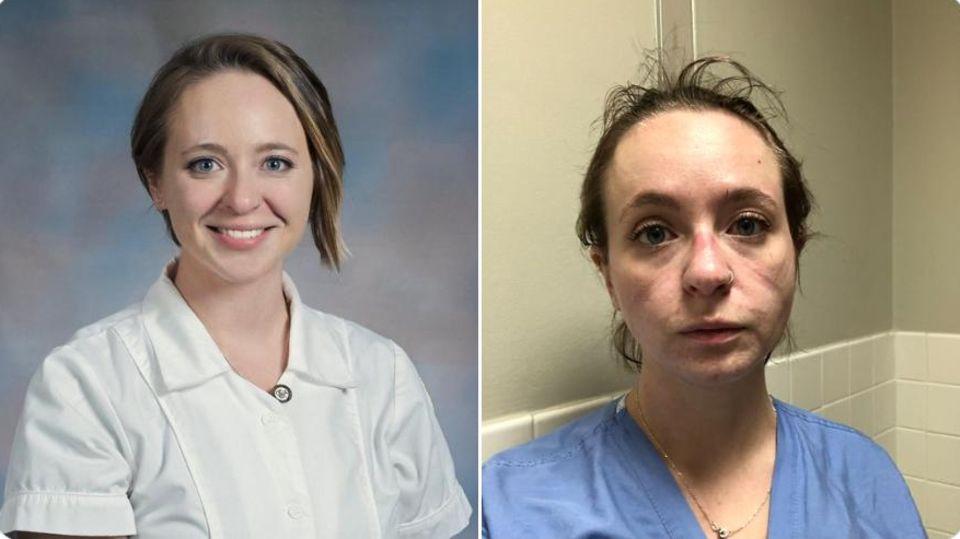 Vorher-Nachher-Bilder: Krankenschwestern und Pfleger zeigen, wie die Corona-Monate sie verändert haben