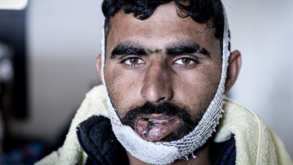 Muhammad, 24, kommt aus Pakistan. Auch er berichtet von brutalen Misshandlungen durch kroatische Grenzpolizisten