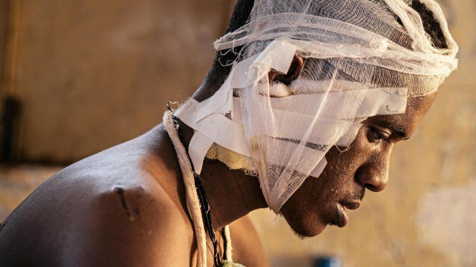 Habrehaly, 21, entkam schwer verletzt. In seinem Heimatort gab es nach einem Massaker durch Tigrayer blutige Rache