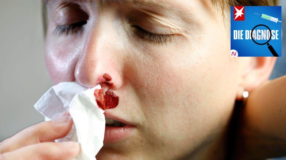 """stern-Podcast """"Die Diagnose"""": Eine Frau leidet 38 Jahre an Nasenbluten"""
