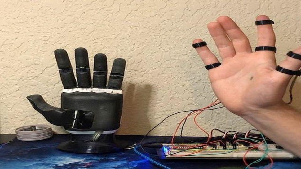 Diese künstliche Hand hilft einem Amputierten fast alle Bewegungen des Alltags durchzuführen.