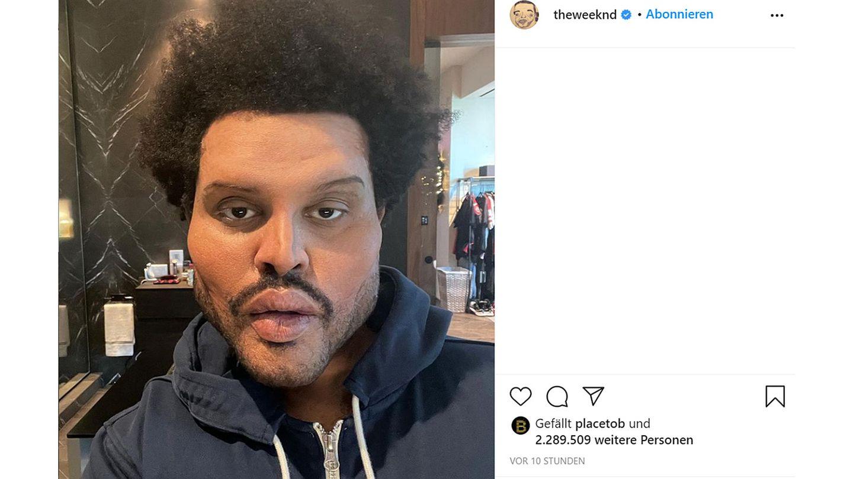 Vip News: The Weeknd schockt seine Fans mit neuem Gesicht