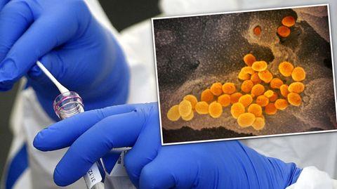 Südafrikanische Coronavirus-Mutation erstmals in Deutschland entdeckt (Video)